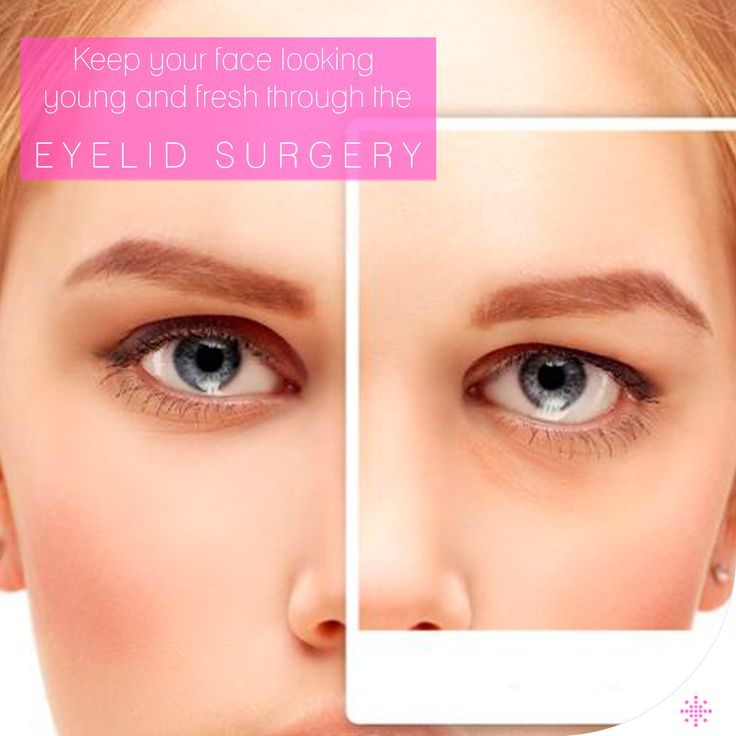 A typical procedure includes incisions in the natural lines of eyelids, in the creases of upper lids, and just below the lashes in the lower lids.   /// For more information 📲 WhatsApp: 0090543 470 47 09 ///  #plasticsurgery #lipfiller #botox #filler #Aesthetics #beauty #estética #cirugíaplástica #estetica #chirurgiaplastica #Ästhetische #plastischeChirurgie #chirurgieplastique #Schönheit #ринопластика #breast#Busen #brust #الثدي #sein ##Brustverminderung ##eyelidsurgery #eyelid