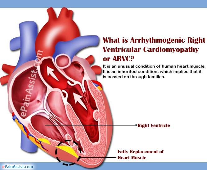 What is Arrhythmogenic Right Ventricular Cardiomyopathy or ARVC?