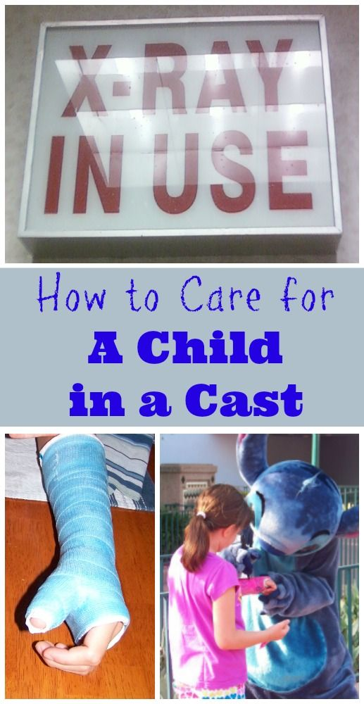 Tips for how to care for your child's cast if they break a bone -- LOTS of great details!