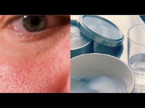 Cómo cerrar los poros abiertos con sólo un ingrediente