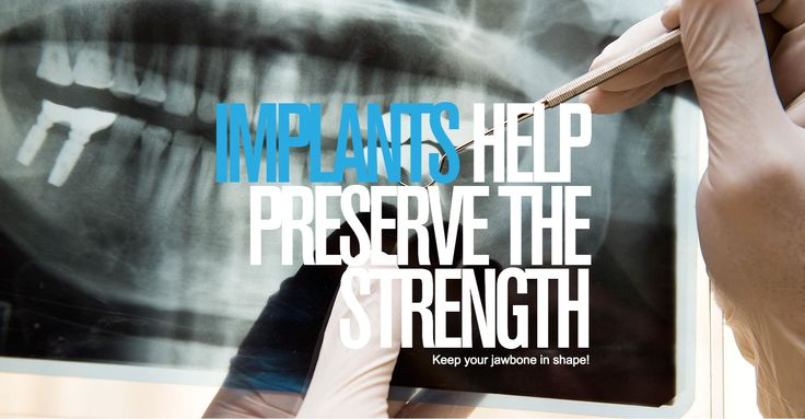 Impladenta Titan Implants help preserve the strength!