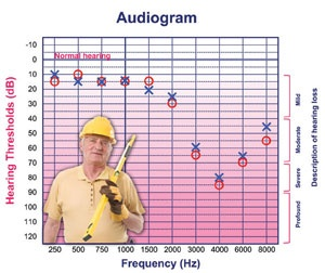 How to read an Audiogram  sc 1 st  Pinterest & 79 best for school images on Pinterest | Speech language therapy ...