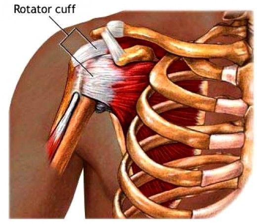 Rotator Cuff Tendonitis Exercises