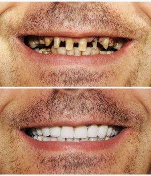 Dental Crown and Bridge placement: After root canal is filled we will do the crown preparation for the RCT treated tooth and teeth and will take final impressions for making your dental crowns and bridges at Glasgow UK. http://www.thedaviedentist.com/home