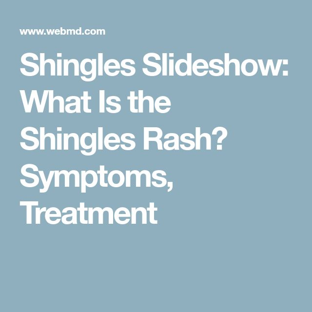 Shingles Slideshow: What Is the Shingles Rash? Symptoms, Treatment