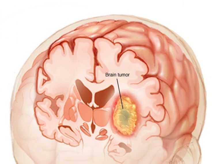 Διάγνωση του καρκίνου του εγκεφάλου