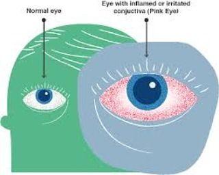 Normal eye and irritated eye  Visit treateyeirritation.com  #eyeirritation #eyeirritations #eyeirritationsux #eyeirritationattack #eyeirritationisabithc #eyeirritationtest #eyeirritationremedy #eyeirritationtreatment #solveeyeirritation #helpeyeirritation #eyeirritationbegone #eyeirritationoccur