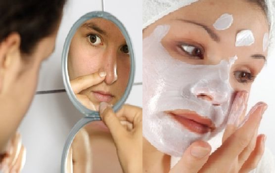 Face Mask for Acne Scars - Rewaj - All About Women Lifestyle