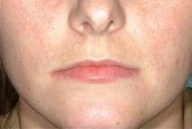 Laserbehandeling bij acne : voor en na