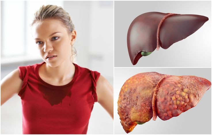 Digestive Problems The liver produces bile – a bitter alkaline fluid which helps digestion. If the liver's work is impaired, less bile can mean you have a harder time digesting fatty foods and alcohol. You may also suffer constipation, diarrhea, acid reflux or heartburn.
