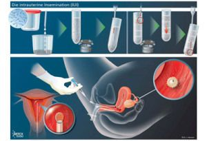 Male factor infertility and clomid