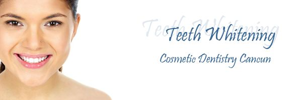 Teeth Whitening can be performed by a reliable and trustworthy Playa del Carmen dental clinic for a fraction of the cost you'd pay at normal dentistry offices.