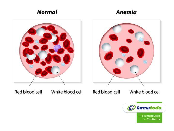 ¿Qué es la anemia? FARMACIA La anemia se debe a la falta de hemoglobina en la sangre que está por debajo del nivel normal del conteo de glóbulos rojos. La hemoglobina es la responsable de transportar oxígeno a la sangre y la carencia de ésta, causa deficiencia en la oxigenación de órganos vitales. La principal causa de anemia se debe principalmente a problemas nutricionales, como al falta de hierro en la dieta y que se encuentra en la carne, algunas verduras y frutos secos. #grupofarmatodo
