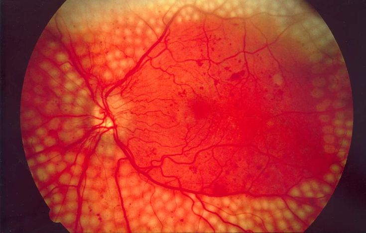 Diabetic retinopathy is caused by damage to the blood vessels in the tissue at the back of the eye (retina). Poorly controlled blood sugar is a risk factor.