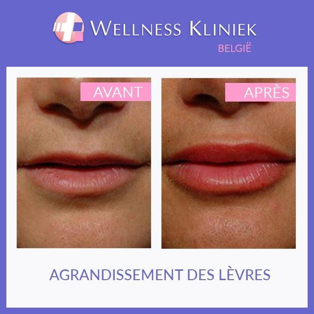 Obtenez tous les détails nécessaires sur #lèvres #rajeunissement, #charges, # injectables, photos #photos avant et après