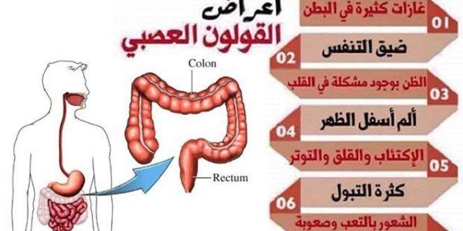 اعراض القولون العصبي المتهيج Colon