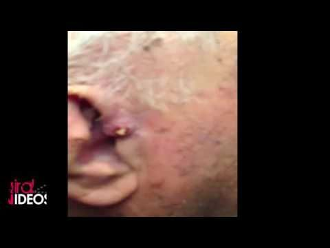 My Father zit popping  Don't Forget to subsribe to our channel for more videos ;)  ----------------------------------------------------------   25 year old zit popping acne zit popping acne zit popping game zit popping zit popping tool zit popping 2016 zi