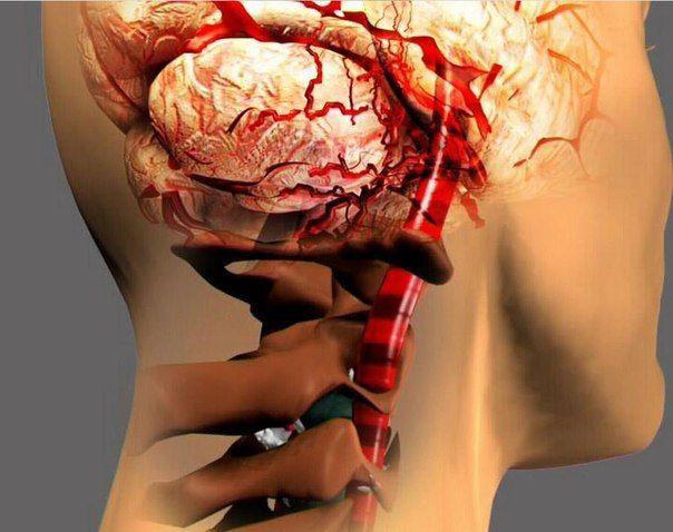 СИНДРОМ ПОЗВОНОЧНОЙ АРТЕРИИ  http://pyhtaru.blogspot.com/2017/07/blog-post_28.html  Синдром позвоночной артерии!  Причину повреждения артерии при шейном остеохондрозе называют вертеброгенной, зависящей от позвонков. Разрушение костного канала, смещение позвонков приводят к сдавливанию сосуда, следовательно, нарушается питание тех структур мозга, к которым он направляется.  Читайте еще: ================================ НАСТОЙКА ДЛЯ СЕРДЦА http://pyhtaru.blogspot.ru/2017/07/blog-post_93.html…