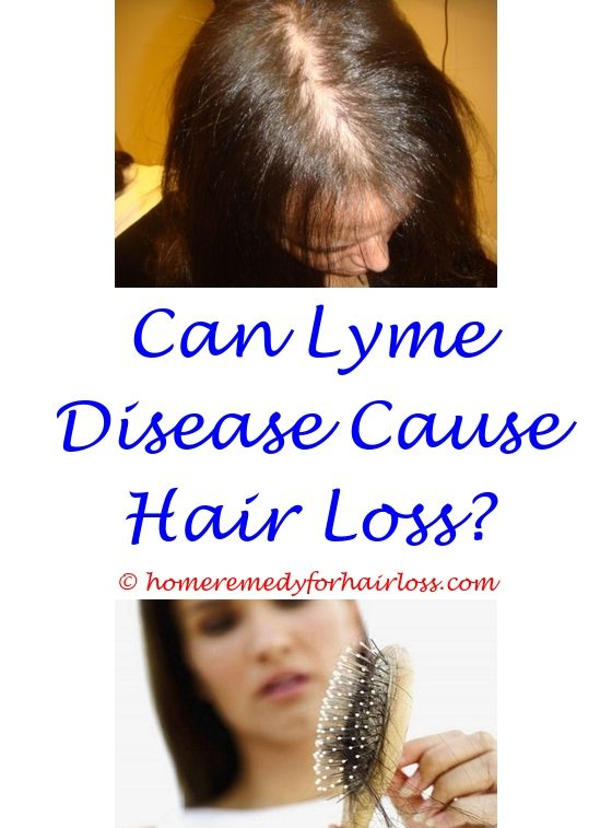 Hair Loss Wearing Wigs How To Deal With Lupus Hair Loss High Blood