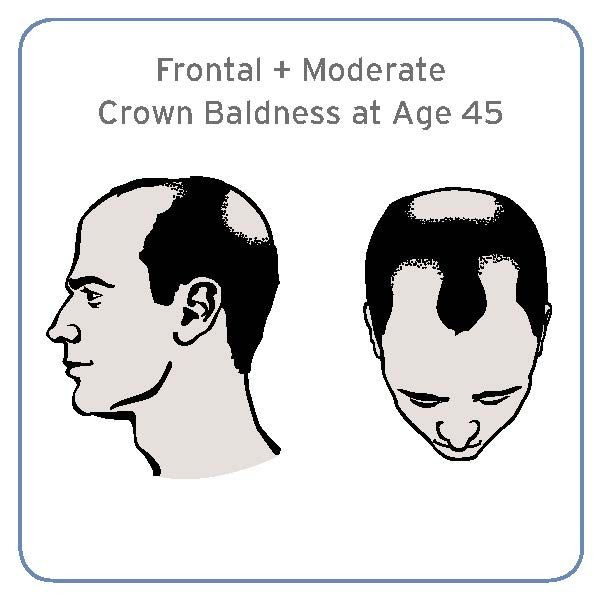Certain Form of Baldness at Age 45 Linked to Higher Risk of Aggressive Prostate Cancer | ASCO.org