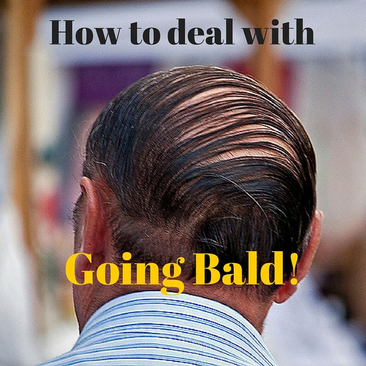 How to Deal With Going Bald! What's the best haircut when you are going bald? Should you shave your head?