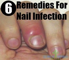 Nail Infection Herbal Remedies, Natural Treatments And Cures | Search Herbal & Home Remedy