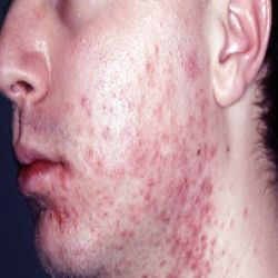 Natural Remedies for Folliculitis - Earth Clinic