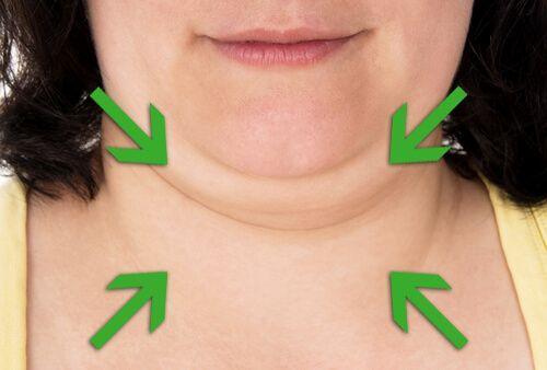 Consigli e trattamenti per tonificare il collo ed eliminare il doppio mento