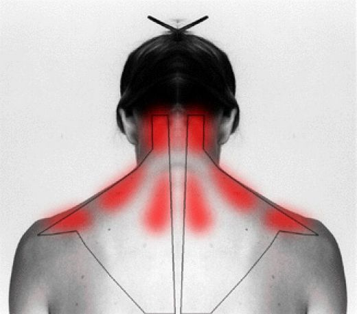 How to treat a stiff neck. Ouch! Most common areas for muscle spasm creating excrutiating pain.
