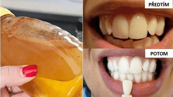 Doporučujeme vám používat kokosový olej, protože jde o nesmírně zdravý olej, který má nespočet využití nejen v kulinářství, ale i v přírodní léčbě. Nejdůležitějšími výhodami proplachování úst kokosovým olejem pro vaše dentální zdraví jsou: bělost zubů úžasný účinek na celou ústní dutinu bojuje s bakteriemi a infekcemi dásní odbourává plak a dokonce časem i zubní …