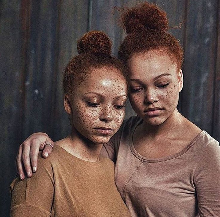 I love their freckles and red hair...they are both so beautiful!!!