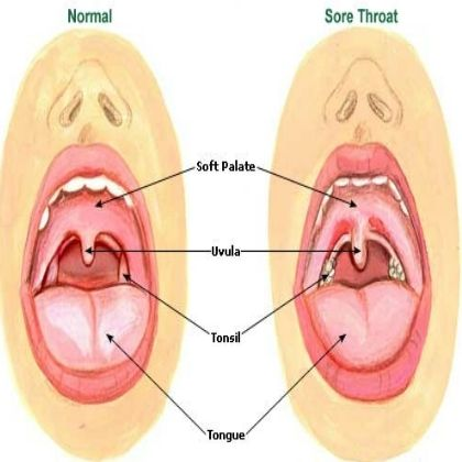 Natural Ways To Get Rid Of Cold And Sore Throat