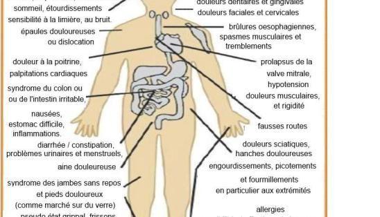 Fibromyalgie explications