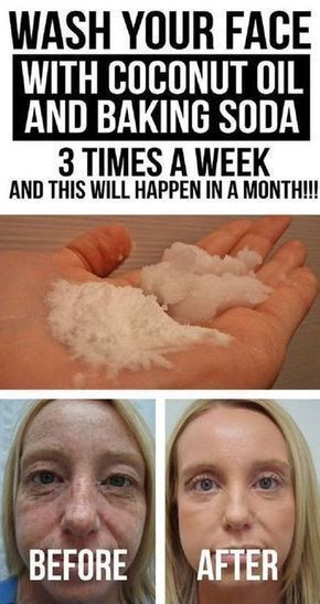 Baking Soda and Coconut Oil Face Wash - 16 Proven Skin Care Tips and DIYs to Incorporate in Your Spring Beauty Routine #skincaretips