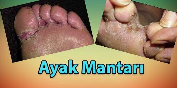 #ayak #ayakmantarı #ayakmantarıtedavisi #ayakmantarınasılgeçer #ayakmantarıçözümü #ayakmantarıilacı  ayak mantarı nedir nasıl tedavi edilir ne iyi gelir