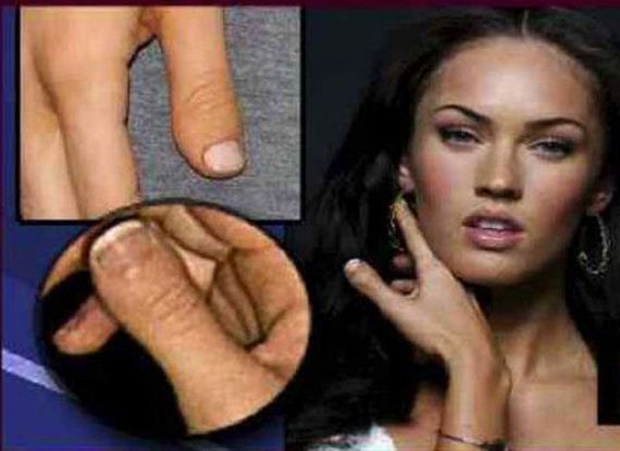 Megan Fox has brachydactlytype D BDD, clubbed thumb