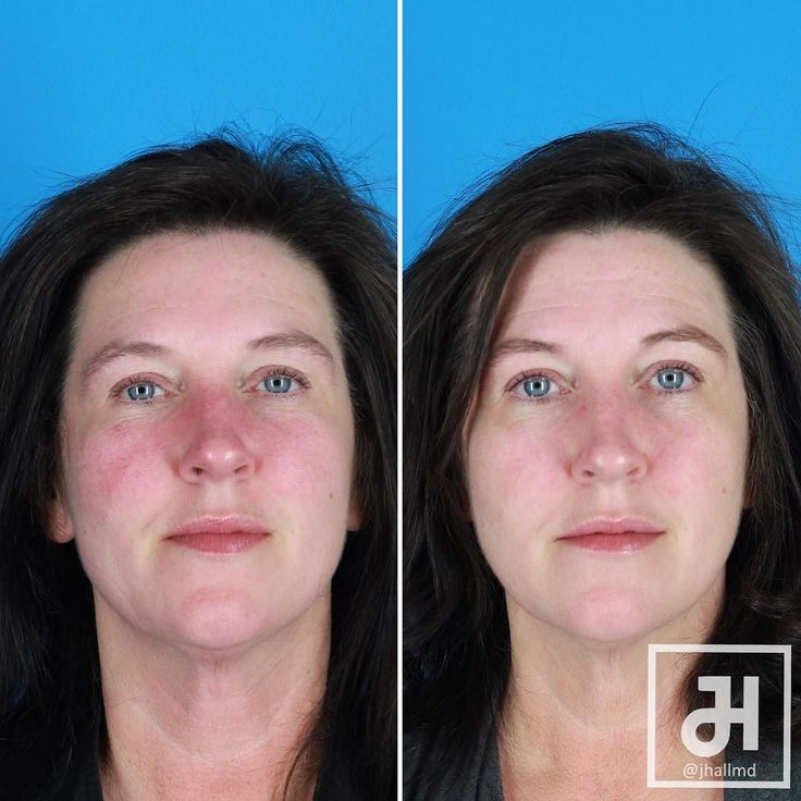 Rosacea is a difficult and frustrating condition for patients. This patient had not been able to leave her house without makeup for most of her adult life. She had two office laser treatments (no anesthesia necessary) and her redness has almost totally disappeared! #nomakeup #nofilter #rosacea  For more information contact my office at: 865.973.9500  info@drjasonhall.com  www.drjasonhall.com  Follow me on social media! Facebook: DrHallPlasticSurgery  Instagram: @jhallmd Twitter: @jhallmd…