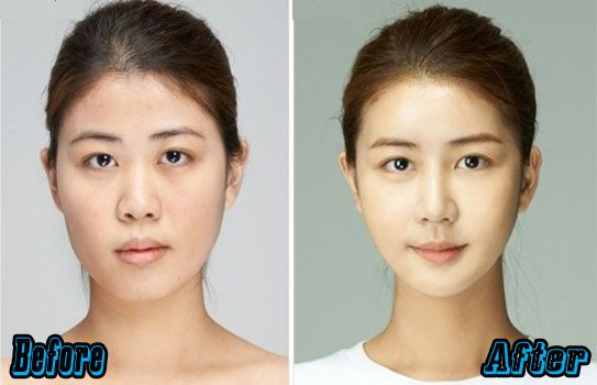 Korean Nose Jobs | http://plasticsurgeryfact.com/south-korean-plastic-surgery-cost-and-procedures/