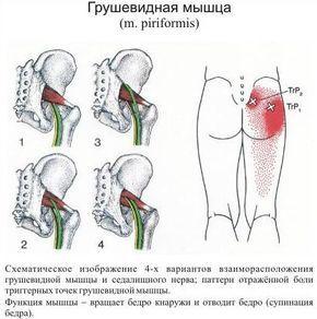 Боль в ягодице: синдром грушевидной мышцы | Массаж.ру