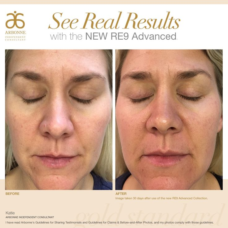 Arbonne Re9 Before And After 54579 Usbdata
