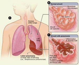 Informasi seputar cara penularan penyakit paru paru basah yang wajib anda ketahui agar anda bisa terhindar dari penyakit paru paru basah.