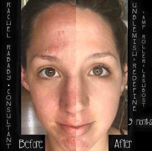 """In her words: """"Okay everyone, no filter, no makeup, 9 months difference...To say I'm excited is an understatement!! This business, these products and this company continue to amaze me every single day. Who uses skincare? EVERYBODY! Who could use an extra paycheck? EVERYBODY! I am so glad I said yes and joined this rapidly growing company that is changing lives in so many ways! You are worth it, your family is worth it and you will not be disappointed by where Rodan + Fields will take you!"""""""