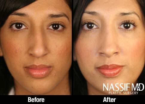 Ethnic Rhinoplasty Before & After