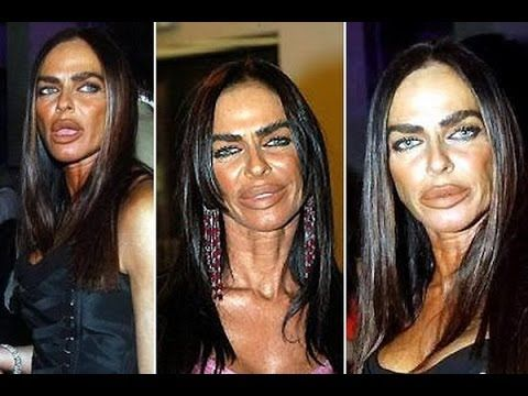 Plastic Surgery Gone Horribly Wrong - Worst Plastic Surgery Ever - Version 3 ---------- Do you want to see some really funny YouTube videos? Check them out here:  http://www.youtube.com/user/TheHouseOfJokes