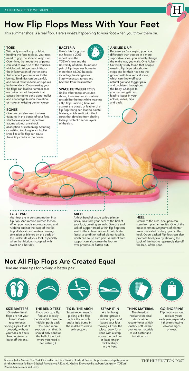 Are flip flips hurting out feet? We all love them as summer staples but as this infographic shows they can be harmful to our feet.