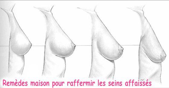 Toute femme veut avoir des seins parfaitement en forme tout au long de sa vie. Malheureusement, cela est impossible dans la plupart des cas. L'affaissement de la poitrine est un processus naturel qui se produit avec l'âge dans lequel les seins perdent leur souplesse et leur élasticité. Bien que l'affaissement des seins commence souvent après qu'une femme …