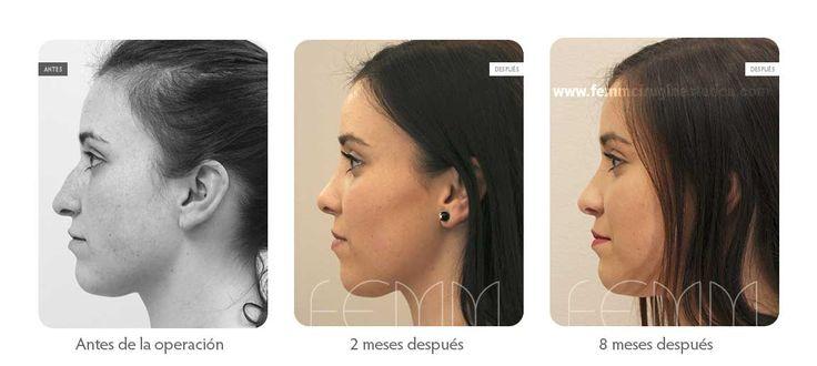 Fotografías antes y después de una cirugía plástica de rinoplastia cerrada realizada a una paciente.