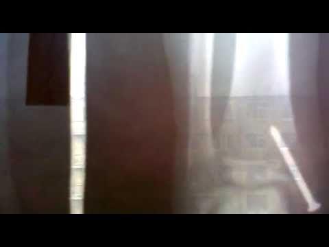 Перелом голеностопного сустава: признаки и лечение