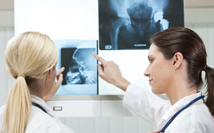 Birmingham Hip Resurfacing Treatment: What You Need to Know After Diagnosis