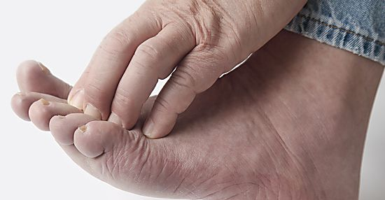Diabetische Polyneuropathie? Das sollten Sie wissen!